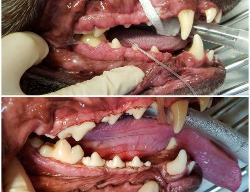 Gingiviahyperplasie