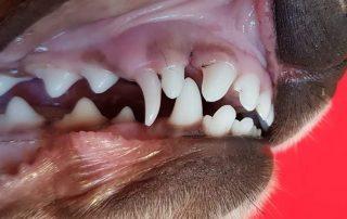 persistierende Milch, Zahnwechsel
