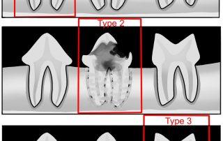 FORL, Zahngesundheit, Dentalröntgen,