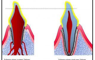 Zahnfraktur, Dental