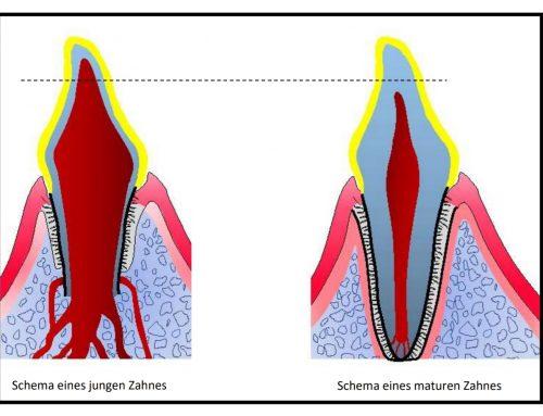 Kann der Zahn trotz Fraktur bleiben, oder muss er raus?