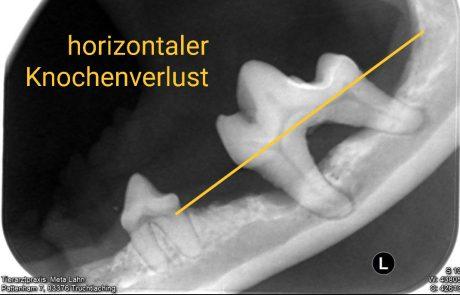 horizontaler Knochenverlust, Dentalröntgen,, Zahngesundheit, Dentalröntgen, Zahnerkrankungen
